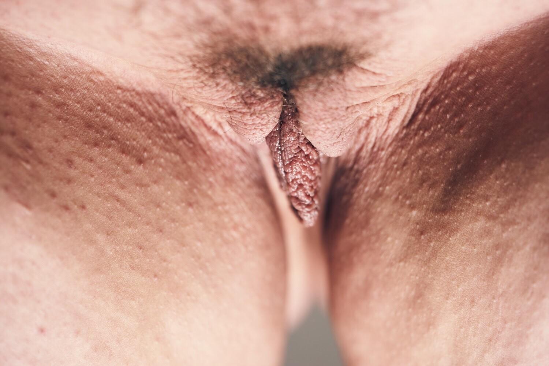 Embarrassing bodies vulva